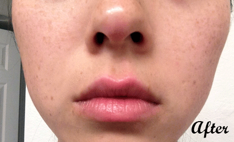 Dark-Spot-Serum-After